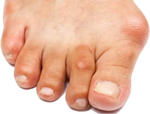 Reumatische voeten